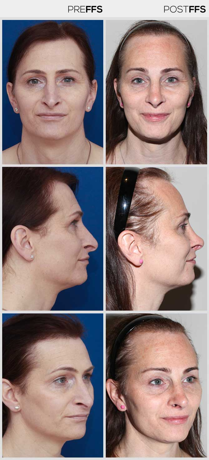 Opinion Facial before and after photos consider, that