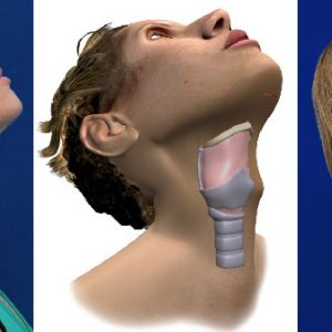 Facial Feminization Surgery - Adam's apple