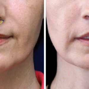 Facial Feminization Surgery - Liplift