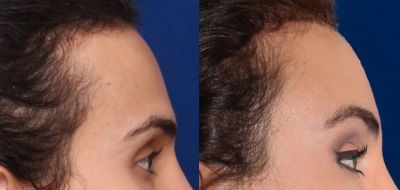 Facial Feminization Surgery - Forehead reconstruction 1