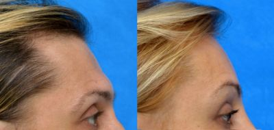 Facial Feminization Surgery - Forehead reconstruction 2