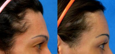 Facial Feminization Surgery - Forehead reconstruction 4