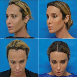 Facial Feminization Surgery - Hairline Lowering Surgery