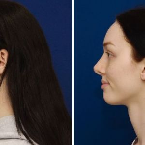 Facial Feminization Surgery - Rinoplastia