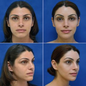 Facial Feminization Surgery - Lower jaw and chin