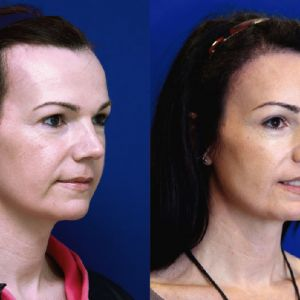 Facial Feminization Surgery - Immediate Hair Transplant 1