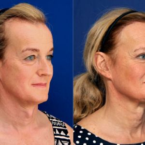 Facial Feminization Surgery - Facial Feminization Surgery - Immediate Hair Transplant 2