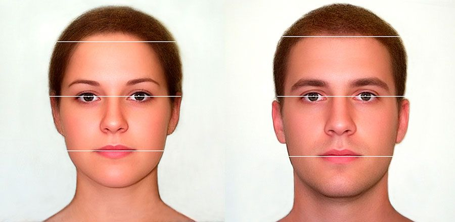 Guide to Hairline Feminization and Facial Feminization Surgery